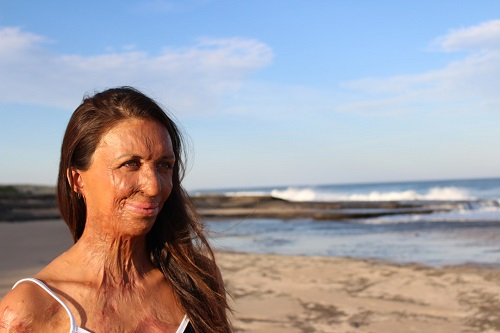 Turia Pitt shares source of strength
