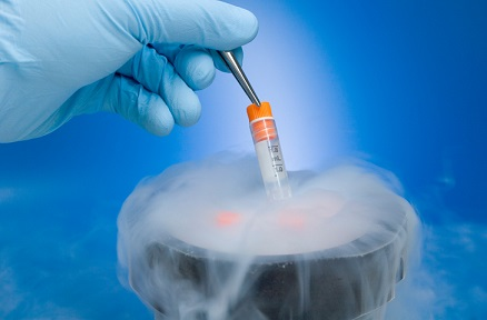 Insurance and the cryogenics issue