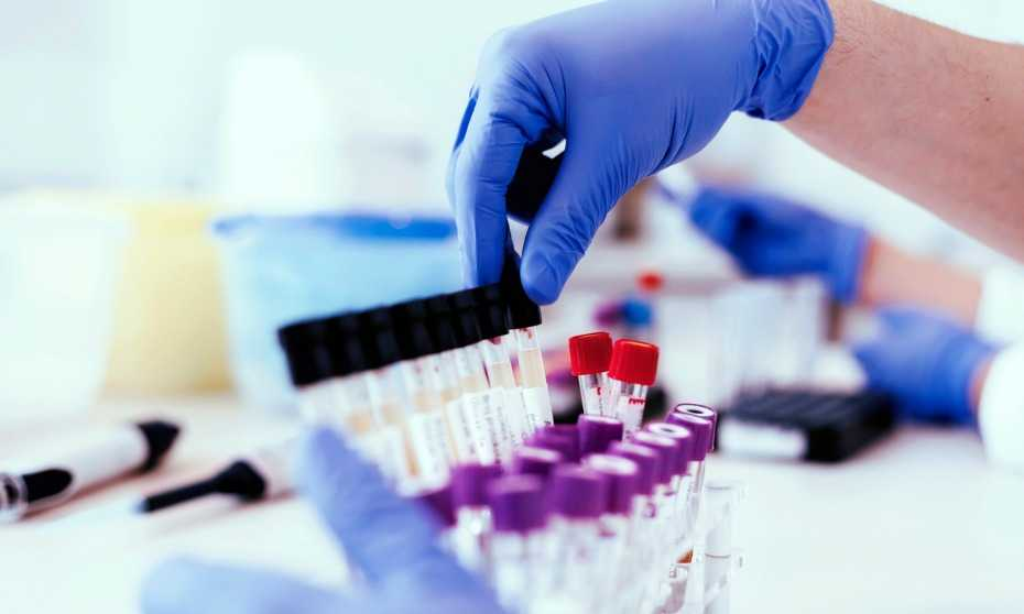 What's the best kind of test for drug screening?